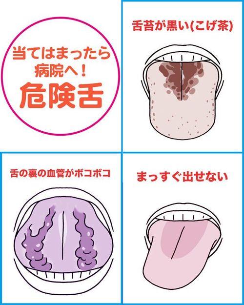 舌 白い 治す