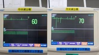 スマホだけじゃない、病院を悩ませる「電波」