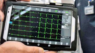 急患の心電図送信システムのすごい威力