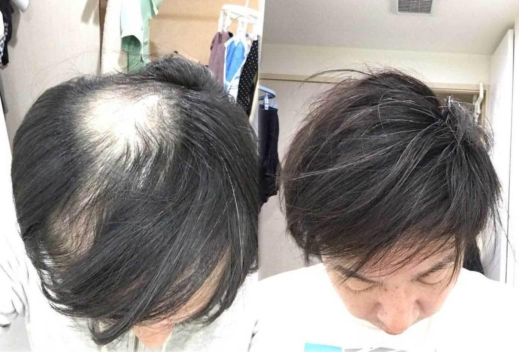 薄い 部 前 頭 女性の頭頂部の薄毛を隠す髪型