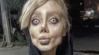 「ゾンビ顔」さらした22歳イラン人女性の末路