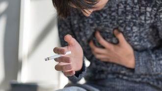 喫煙と肺がんの実はよく知られていない関係