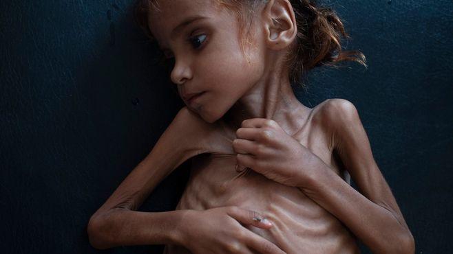 記者も悩む「イエメン」あまりにも悲惨な現状