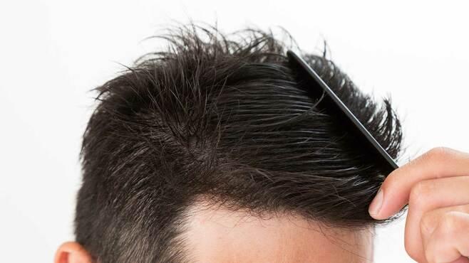 薄毛なのに堂々とできる人の「髪型」を作るコツ