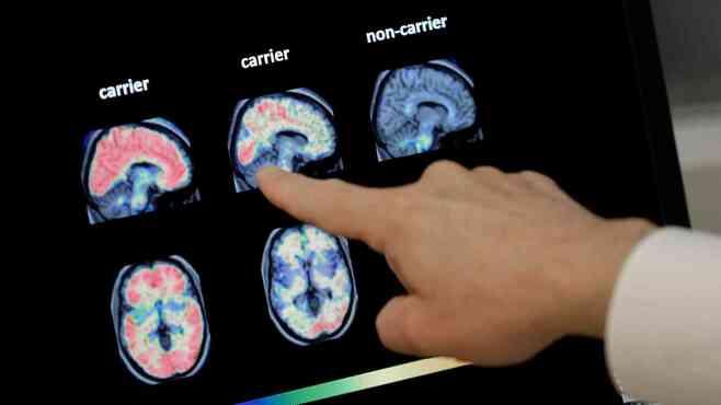 アルツハイマー病「根本治療薬」が迎えた正念場