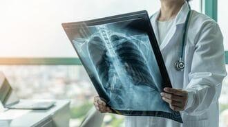 がんを疑うべき人が抱える「9つの症状」と治療法