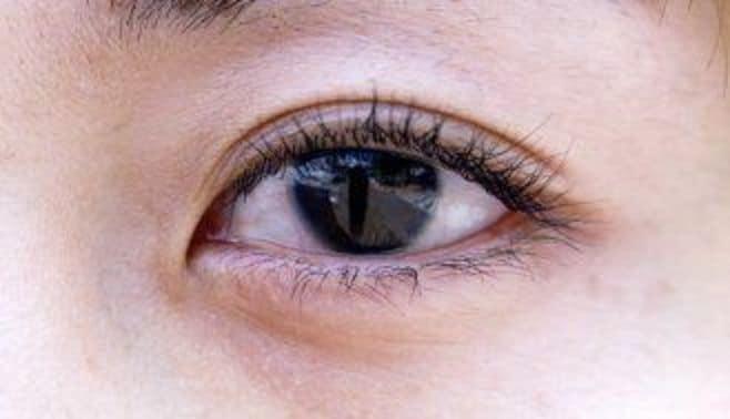 失明防ぐ、加齢黄斑変性薬を参天製薬が発売