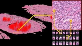 日本製AIが自ら見つけ出した「がん再発」の特徴