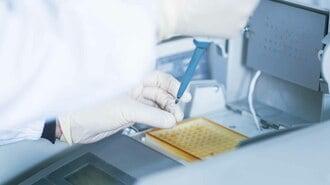 保険適用でも気軽に使えない「PCR検査」の実態