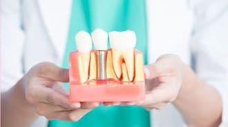 歯を失って困っている人に教えたい最新事情