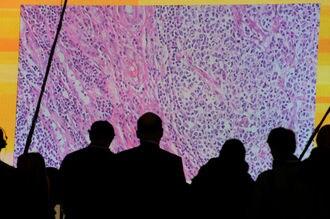 空前の「がん治療薬」競争、ホンモノはどれ?