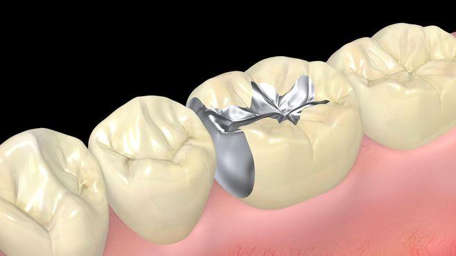 注意!その体の不調、銀歯が原因かもしれない